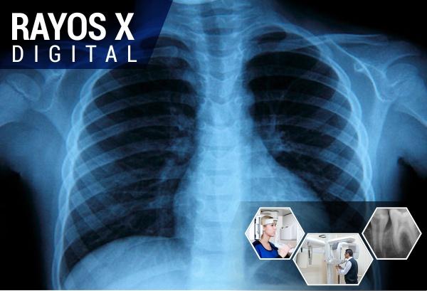 rayos x digital torax
